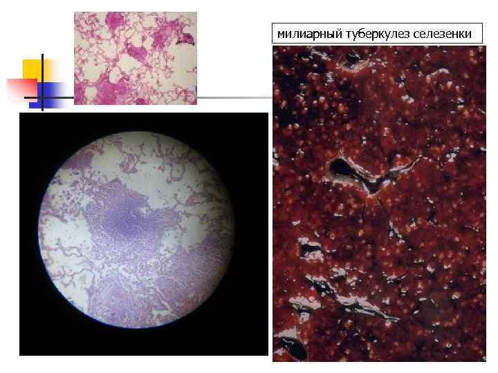 милиарный туберкулез селезенки