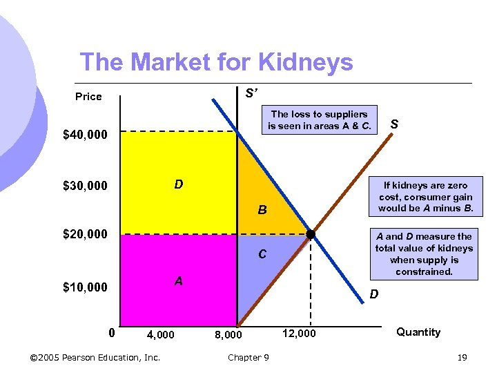 The Market for Kidneys S' Price The loss to suppliers is seen in areas