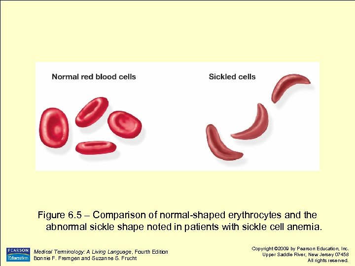 Figure 6. 5 – Comparison of normal-shaped erythrocytes and the abnormal sickle shape noted