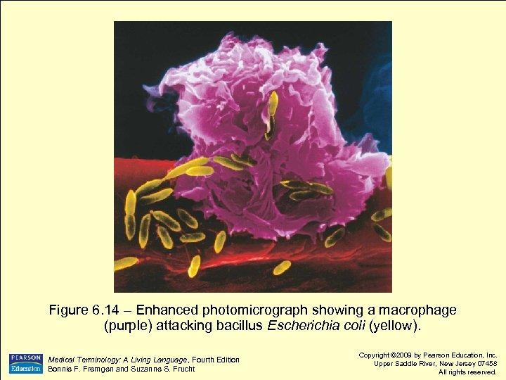 Figure 6. 14 – Enhanced photomicrograph showing a macrophage (purple) attacking bacillus Escherichia coli