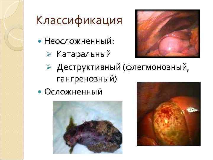 Классификация Неосложненный: Катаральный Ø Деструктивный (флегмонозный, гангренозный) Осложненный Ø