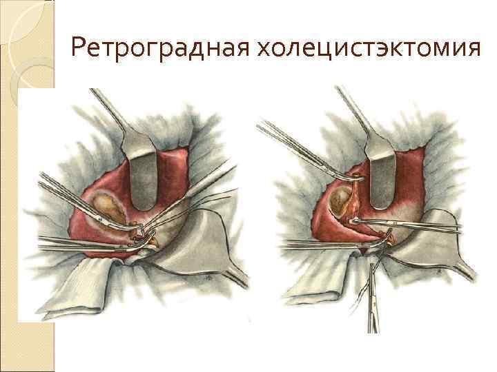 Ретроградная холецистэктомия
