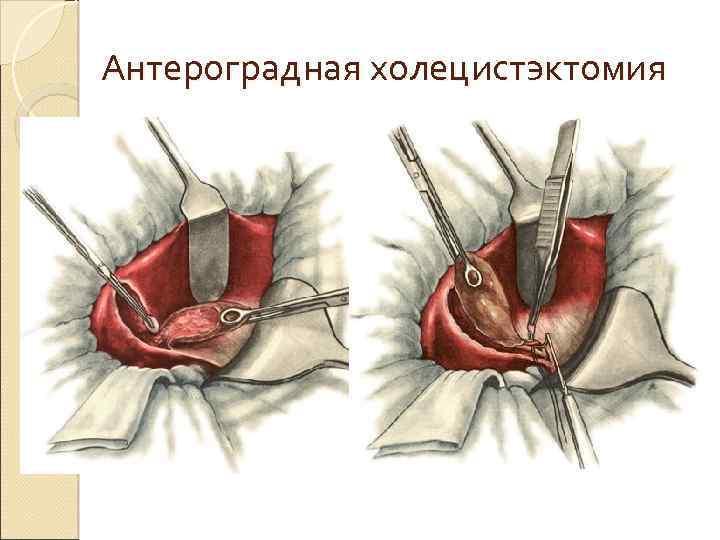 Антероградная холецистэктомия