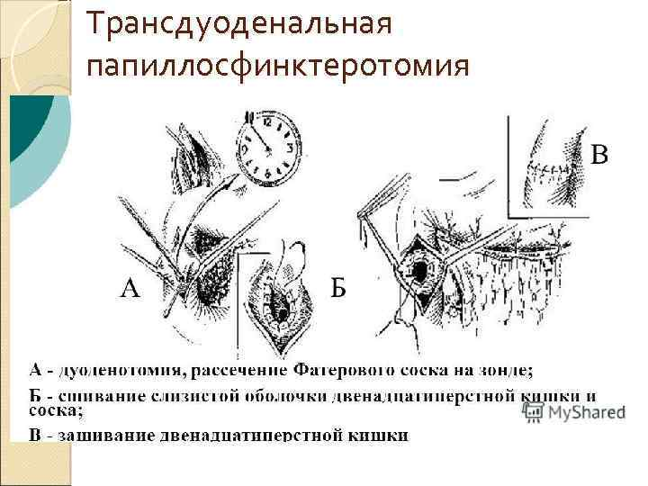 Трансдуоденальная папиллосфинктеротомия