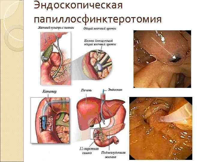 Эндоскопическая папиллосфинктеротомия