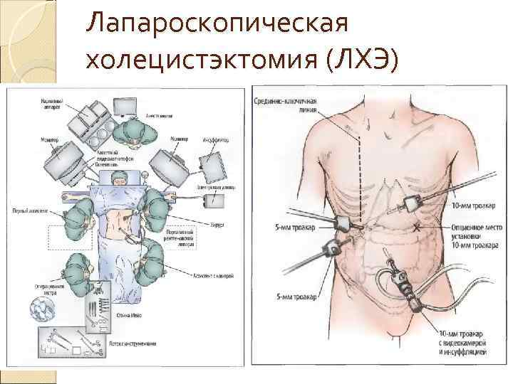 Лапароскопическая холецистэктомия (ЛХЭ)