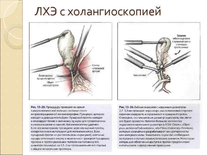 ЛХЭ с холангиоскопией