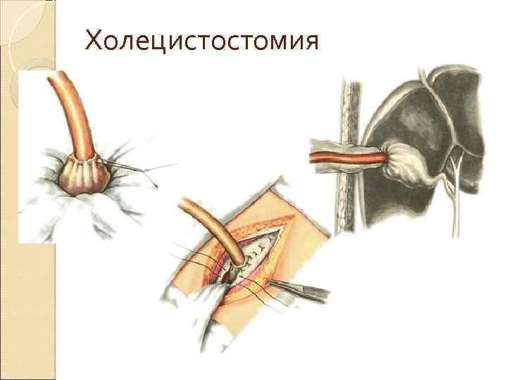 Холецистостомия