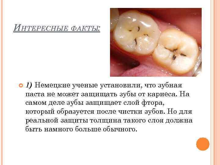 ИНТЕРЕСНЫЕ ФАКТЫ: 1) Немецкие ученые установили, что зубная паста не может защищать зубы от