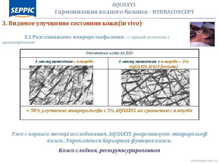 AQUAXYL Гармонизация водного баланса - HYDRACONCEPT 3. Видимое улучшение состояния кожи(in vivo) 3. 2