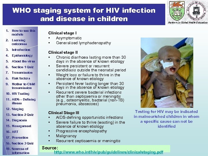 WHO staging system for HIV infection and disease in children 1. How to use