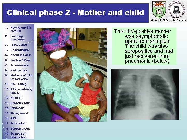 Clinical phase 2 - Mother and child Partners in Global Health Education 1. How