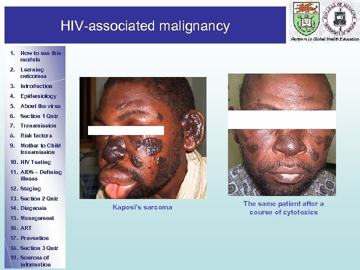HIV-associated malignancy Partners in Global Health Education 1. How to use this module 2.