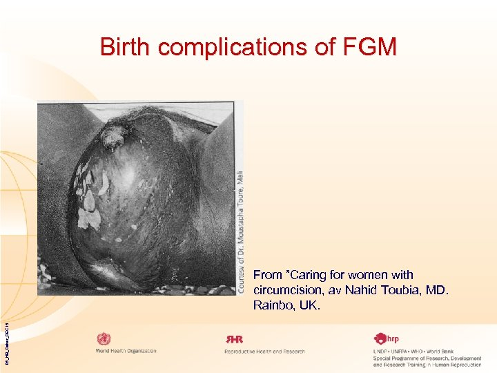 "Birth complications of FGM 05_HB_Dakar_DEC 15 From ""Caring for women with circumcision, av Nahid"