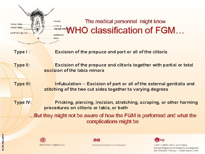 The medical personnel might know WHO classification of FGM… Type I : Excision of