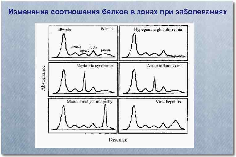 Изменение соотношения белков в зонах при заболеваниях