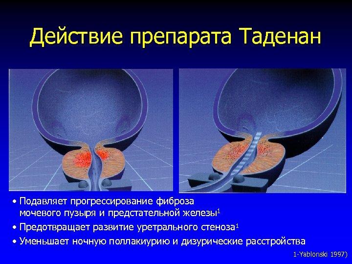 Действие препарата Таденан • Подавляет прогрессирование фиброза мочевого пузыря и предстательной железы1 • Предотвращает
