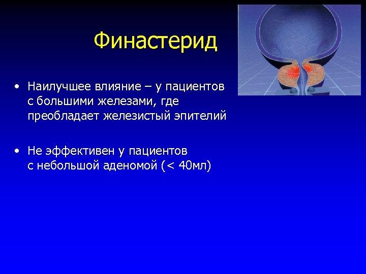 Финастерид • Наилучшее влияние – у пациентов с большими железами, где преобладает железистый эпителий