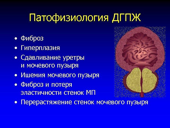 Патофизиология ДГПЖ • Фиброз • Гиперплазия • Сдавливание уретры и мочевого пузыря • Ишемия