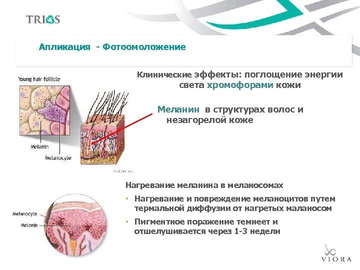 Апликация - Фотоомоложение Клинические эффекты: поглощение энергии света хромофорами кожи Меланин в структурах волос