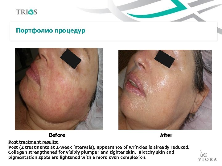 Портфолио процедур Before After Post treatment results: Post (2 treatments at 2 -week intervals),
