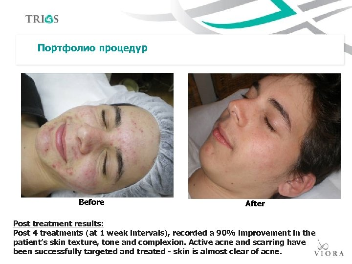 Портфолио процедур Before After Post treatment results: Post 4 treatments (at 1 week intervals),