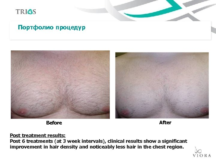Портфолио процедур Before After Post treatment results: Post 6 treatments (at 3 week intervals),