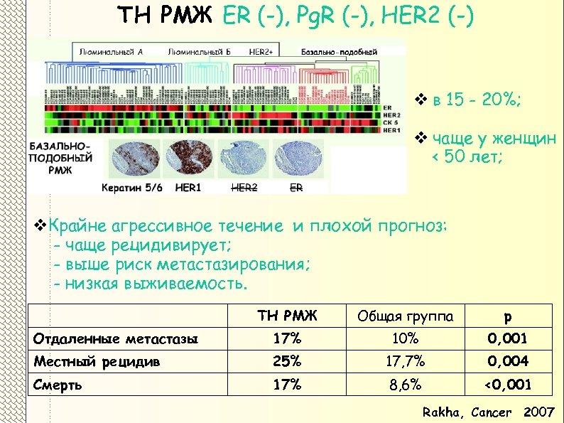 ТН РМЖ ER (-), Pg. R (-), HER 2 (-) v в 15 -