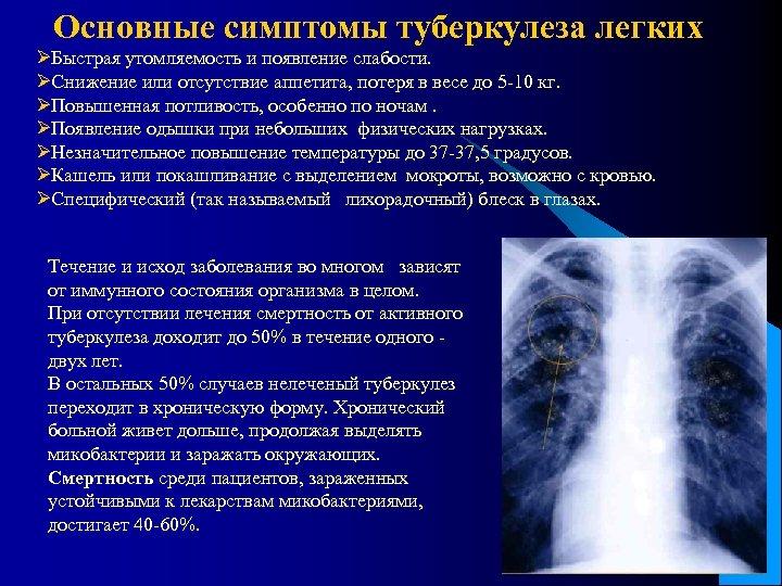 Основные симптомы туберкулеза легких ØБыстрая утомляемость и появление слабости. ØСнижение или отсутствие аппетита, потеря