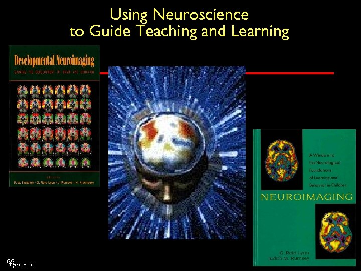 Using Neuroscience to Guide Teaching and Learning 65 et al Lyon