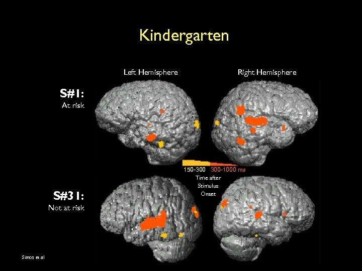 Kindergarten Left Hemisphere Right Hemisphere S#1: At risk S#31: Not at risk Simos et