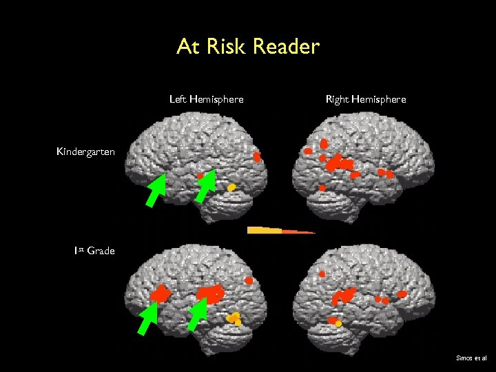 At Risk Reader Left Hemisphere Right Hemisphere Kindergarten 1 st Grade Simos et al