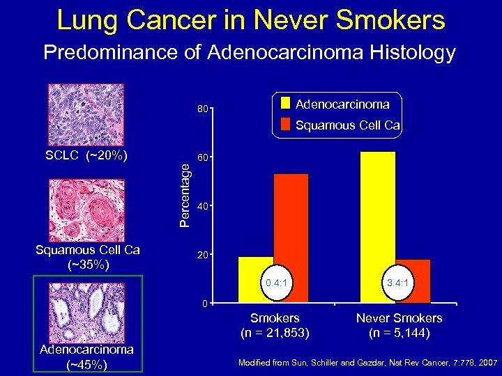 Lung Cancer in Never Smokers Predominance of Adenocarcinoma Histology Adenocarcinoma 80 Squamous Cell Ca