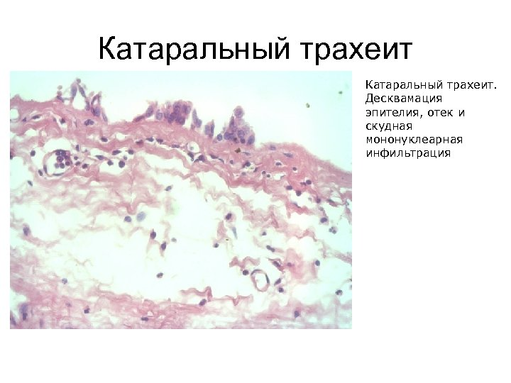 Катаральный трахеит. Десквамация эпителия, отек и скудная мононуклеарная инфильтрация
