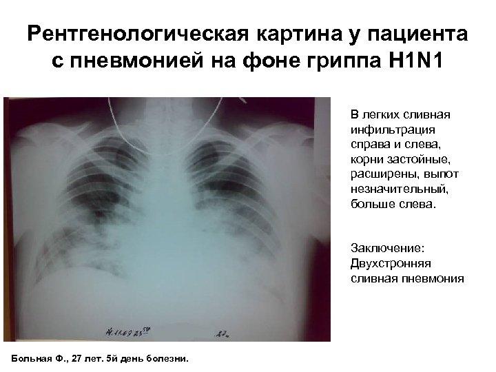Рентгенологическая картина у пациента с пневмонией на фоне гриппа H 1 N 1 В