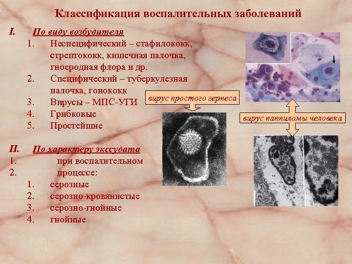 Классификация воспалительных заболеваний I. По виду возбудителя 1. Неспецифический – стафилококк, стрептококк, кишечная палочка,