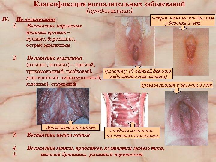 Классификация воспалительных заболеваний (продолжение) IV. По локализации: 1. Воспаление наружных половых органов – вульвит,