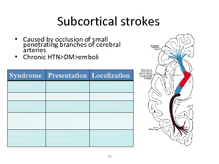 Subcortical strokes • Caused by occlusion of small penetrating branches of cerebral arteries •