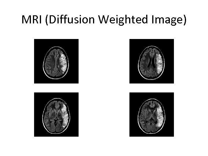 MRI (Diffusion Weighted Image)