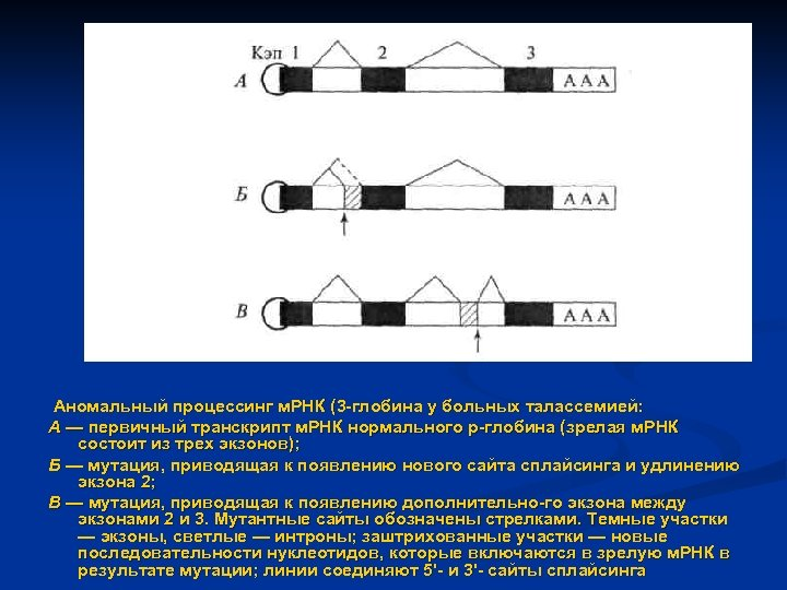 Аномальный процессинг м. РНК (3 глобина у больных талассемией: А — первичный транскрипт м.