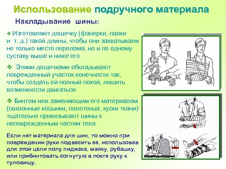 Использование подручного материала Накладывание шины: v Изготовляют дощечку (фанерки, палки и т. д. )
