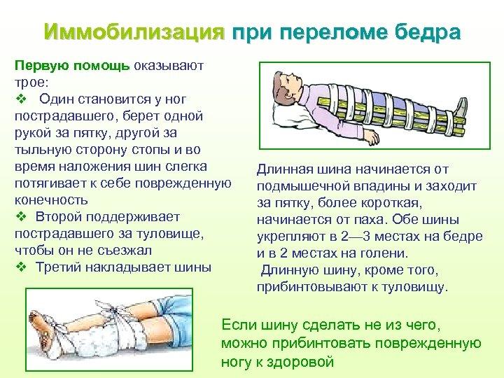 Иммобилизация при переломе бедра Первую помощь оказывают трое: v Один становится у ног пострадавшего,