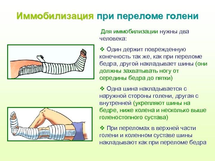 Иммобилизация при переломе голени Для иммобилизации нужны два человека: v Один держит поврежденную конечность