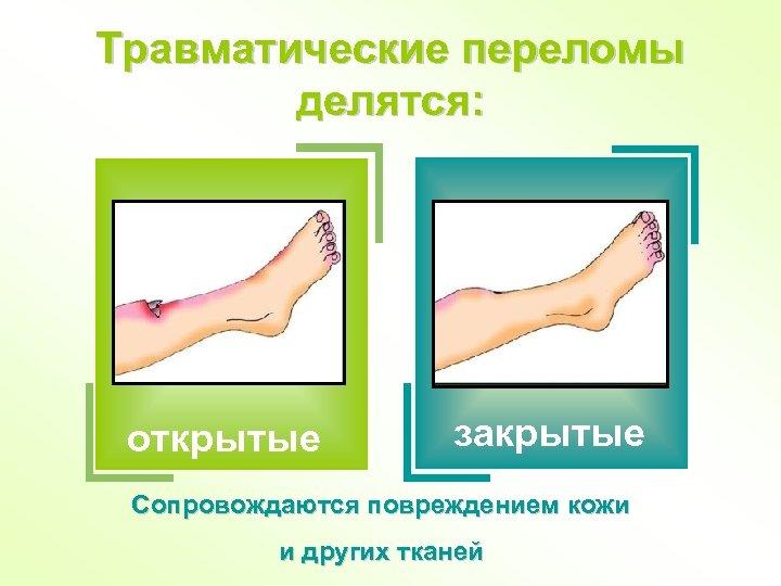 Травматические переломы делятся: открытые закрытые Сопровождаются повреждением кожи и других тканей