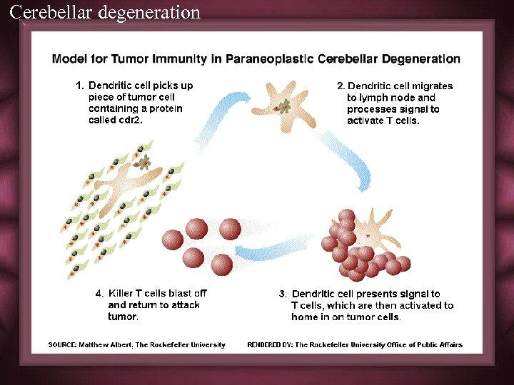 Cerebellar degeneration