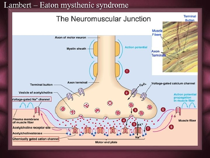 Lambert – Eaton mysthenic syndrome