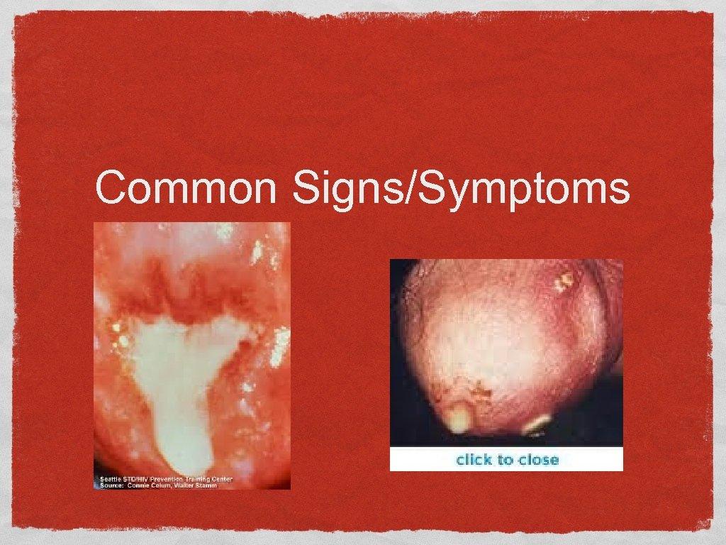 Common Signs/Symptoms