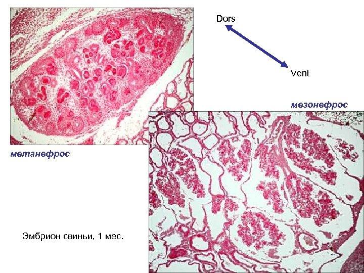 Dors Vent мезонефрос метанефрос Эмбрион свиньи, 1 мес.