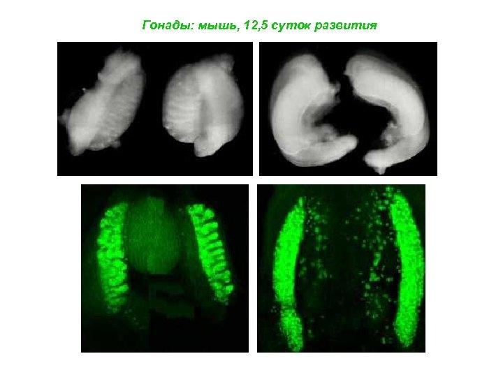 Гонады: мышь, 12, 5 суток развития