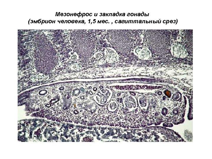 Мезонефрос и закладка гонады (эмбрион человека, 1, 5 мес. , сагиттальный срез)